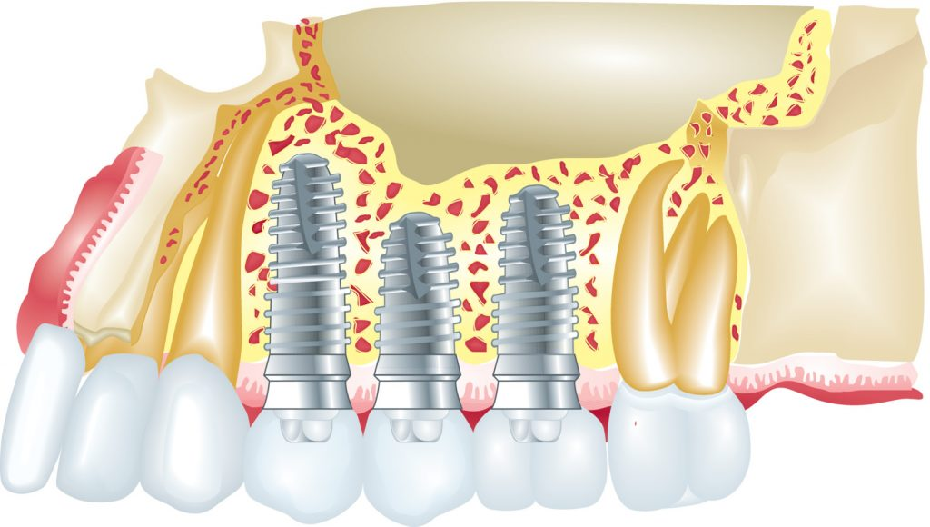 dental implants with nanotechnology